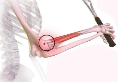 Tennisarm ook wel aangeduid als Tenniselleboog / Epicondylitis